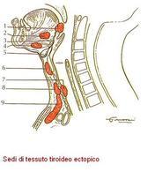 Sedi di tessuto tiroideo ectopico