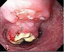 Cancro vegetante del terzo inferiore