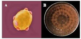Fig. 17. Saccharomyces cerevisiae (lievito, A); Neurospora crassa (Muffa arancione del pane, B)