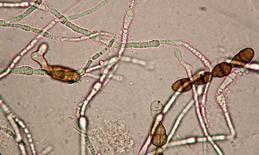 Fig. 1. Osservazione di un microrganismo pigmentato (microscopia in campo chiaro)