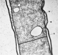 Fig. 1. Sezione ultrasottile di un batterio Gram negativo