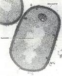 Figura 1. Struttura del nucleoide in Bacillus fastidiosus