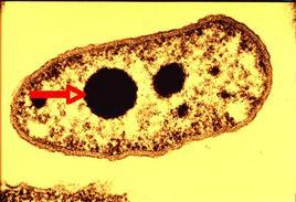Figura 3. Granuli di polifosfato in Pseudomonas aeruginosa