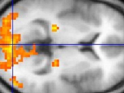 Immagine di fMRI. Immagine da Wikipedia