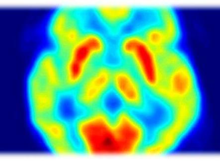 Immagine del cervello alla PET. Immagine da Wikipedia