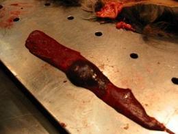Milza di cane. Lesione sferica a margini netti di colore rosso scuro. Ematoma.