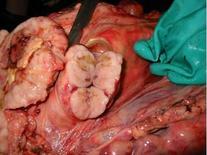 Linfonodo bovino: infiltrazione diffusa  di tessuto biancastro. Leucosi bovina.