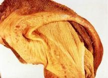 Bovino: Rumine piccole erosioni presenti sulla mucosa. Fonte: Mouwen, Van Der Gaag, Pospischil, Pohelnz, Atlante a colori della Patologia Veterinaria dell'Apparato digerente. Giraldi, 2002