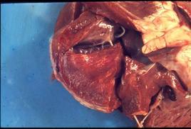 Bovino. Cuore: strie biancastre nel miocardio.