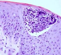 Aspetto istologico di una pustola, caratterizzato da raccolta di granulociti neutrofili degenerati (piociti) nello spessore dell'epitelio polistratificato.