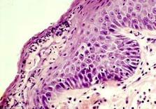 Pustola: granulociti neutrofili e detriti necrotici che complicano l'essudato sieroso.