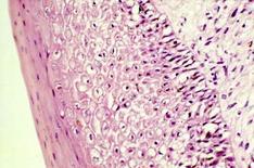 Degenerazione palloniforme  a carico delle cellule epiteliali dello starto spinoso.