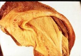 Bovino. Rumine. Lesioni erosive disseminate sulla mucosa.