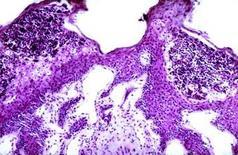 Rumine. Raccolta di granulociti neutrofili nell'ambito dello strato corneo ispessito. Ematossilina-eosina.