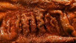 Suino: colon. Ispessimento della parete e presenza di pseudomembrane necrotiche sulla mucosa.