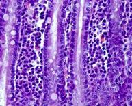 Cane. Duodeno. Infiltrato linfoplsamacellulare nell'asse dei villi. Ematossilina-eosina.