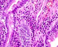 Cane. Duodeno. Infiltrato eosinofilico nell'asse dei villi.