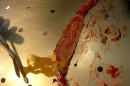 Cane. Intestino. Enterite catarrale con abbondante essudato ed emorragie sulla mucosa.