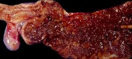 Cane. Colitiflite catarrale emorragica da Trichuris vulpis. Fonte: Marcato P. S., Patologia Sistematica Veterinaria. Il Sole 24 Ore-Edagricole, 2002.