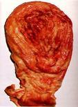 Cane. Stomaco. Neoplasia maligna