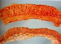 Suino. Intestino. Ispessimento diffuso della mucosa che assume un aspetto cerebroide.