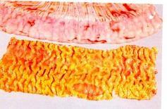 Suino intestino. Aree di necrosi osservabili tra le pliche ispessite della mucosa.