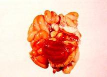 Suino. Pacchetto intestinale. Diffusa emorragia localizzata al colon.