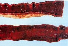 Suino. Intestino. Mucosa diffusamente arrossata ed emorragica con aree di necrosi.