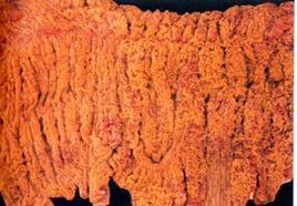 Suino. Duodeno. Essudato fibrino necrotico diffuso. Fonte: Mouwen, Van Der Gaag, Pospischil, Pohelnz, Atlante a colori della Patologia Veterinaria dell'Apparato digerente. Giraldi, 2002.