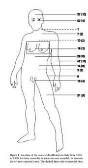 Principali localizzazioni di Dirofilaria repens nell'uomo (da Pampiglione, Parassitologia, 2001).