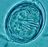 Uovo di Echinococcus granulosus