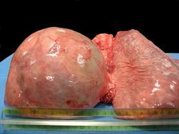 Cisti idatidea in polmone di bufalo