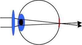 Correzione di un occhio ipermetrope