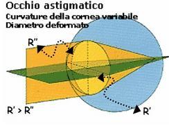 Curvatura di una cornea astigmatica