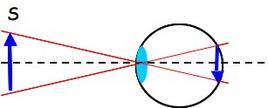 Immagine di una sorgente esterna sulla retina