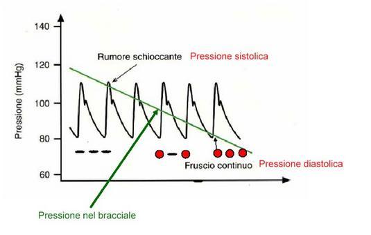Amdamento della pressione aortica e della pressione nel bracciale dello sfigmomanometro durante una misura di pressione (da UniPg )