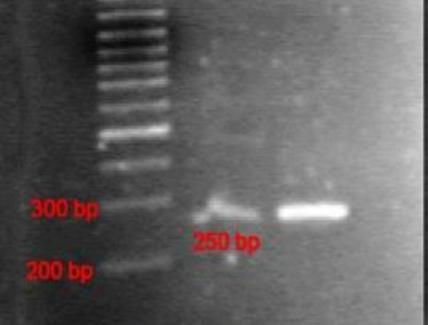 Fotografia di un gel con DNA. Fonte wikipedia