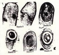 """Microfotografia di alcuni stadi della sporificazione in Bacillus subtilis. Immagine modificata da """"Microbiologia"""" di Polisinelli et al."""