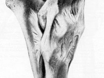 Articolazione del gomito del cavallo, veduta mediale