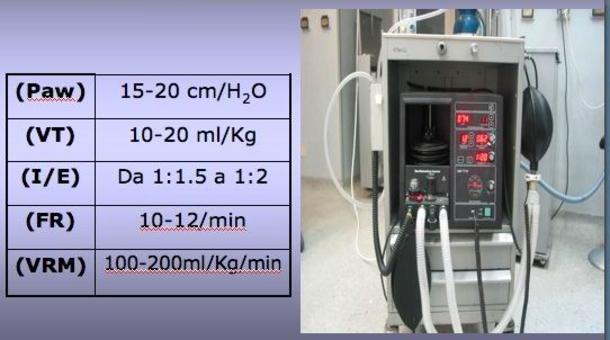 Parametri da impostare su ventilatore meccanico