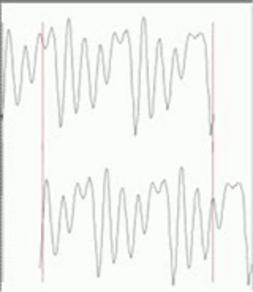 Esempio grafico del funzionamento della autocorrelazione