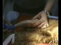 Manovra per la valutazione della lussazione laterale di rotula. Test eseguito in sedazione.