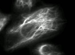 Dinamicità dei filamenti intermedi