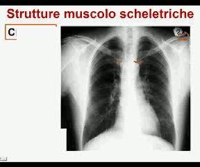 Strutture muscolo-scheletriche
