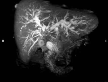 3D reconstruction through magnetic resonance imaging